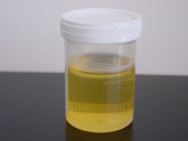 Anti séptico de urina