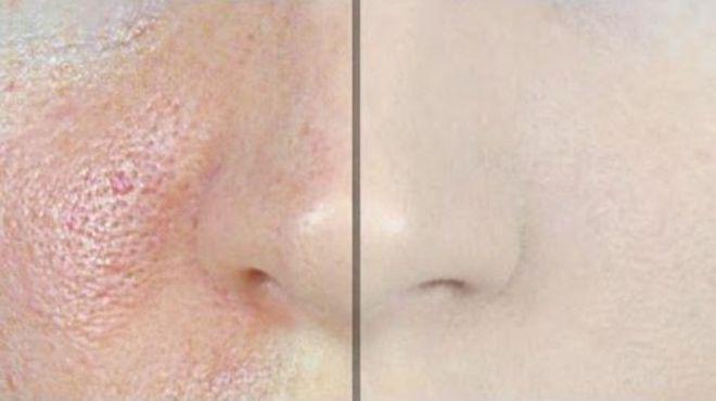 Dicas caseiras para ajudar a fechar os poros do rosto