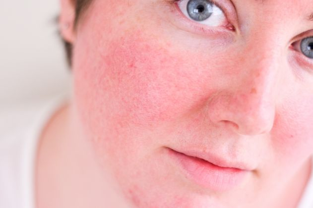 Conheça alguns dos problemas de pele mais comuns entre as mulheres brasileiras