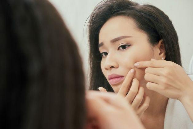 Conheça algumas das principais causas da acne