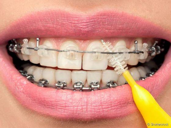 Dicas e cuidados de higiene bucal para quem usa aparelho fixo