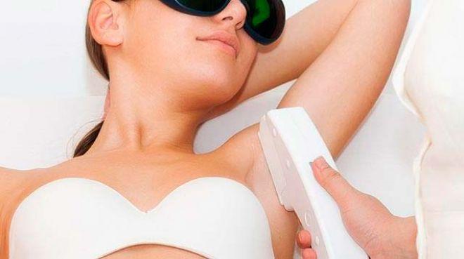Muitos e verdades sobre depilação a laser no verão