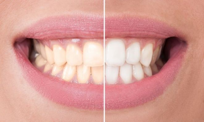Clareamento dental: Confira alguns mitos sobre o tratamento