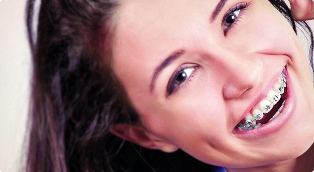 mitos-e-verdades-aparelhos-ortodonticos
