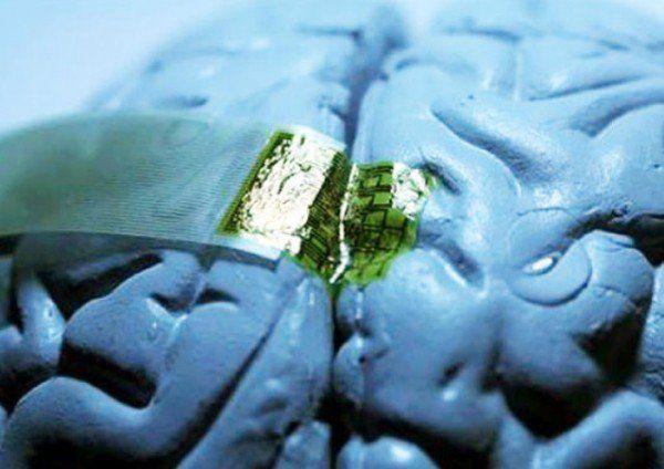 Implante para o cérebro
