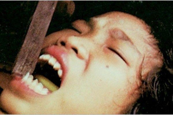 Dentes quebrados